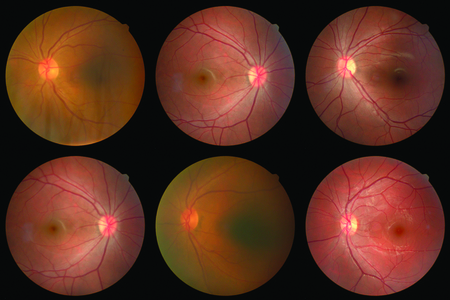 Foto de collection of Retinal image  of the patient taken with retinal photography machine. - Imagen libre de derechos