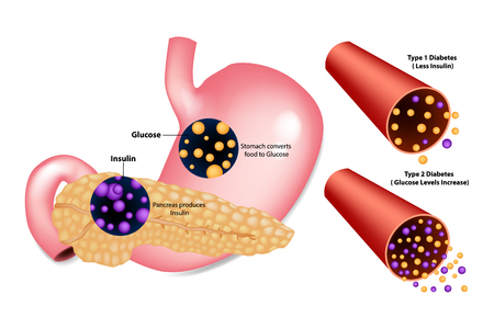 Illustration pour Diabetes Type 1 (Less Insulin) and Type 2 (Glucose Levels Increase). Stomach converts food to Glucose. Pancreas produces Insulin. - image libre de droit