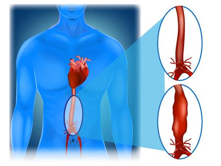Illustration pour Abdominal aortic aneurysm - location and appearance. - image libre de droit
