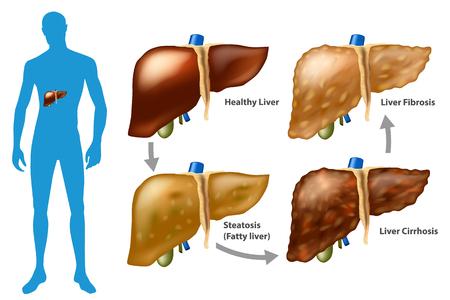Illustration pour Stages of liver damage. The Progression of Liver Disease. (Steatosis, fibrosis, cirrhosis) - image libre de droit