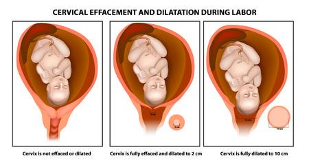 Illustration pour Cervical effacement and dilatation during labor - image libre de droit