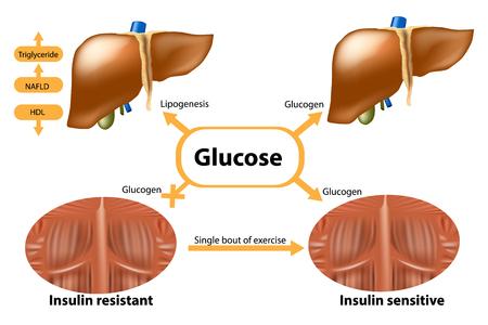 Illustration pour Glycogen in liver and muscle. Insulin sensitive and Insulin resistant. - image libre de droit
