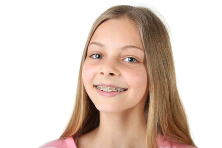 Photo pour Young smiling girl with dental braces on white background - image libre de droit