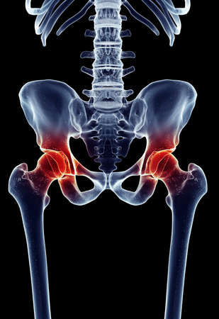 medically accurate illustration - painful hip