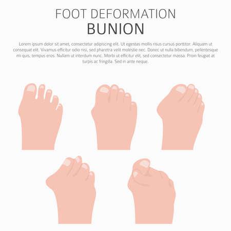 Illustration pour Foot deformation as medical desease infographic. Causes of bunion. Vector illustration - image libre de droit