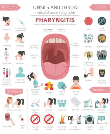 Illustration pour Tonsils and throat diseases. Pharyngitis symptoms, treatment icon set. Medical infographic design. Vector illustration - image libre de droit