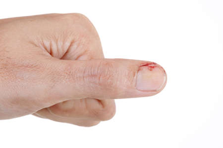 Photo pour The finger was hit with a hammer had Injury with blood. - image libre de droit