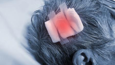 Close-up old woman head injury, head trauma with stitch and gauze