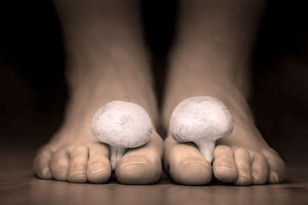 Close view of a white mushrooms between the toes feet imitating toes fungus