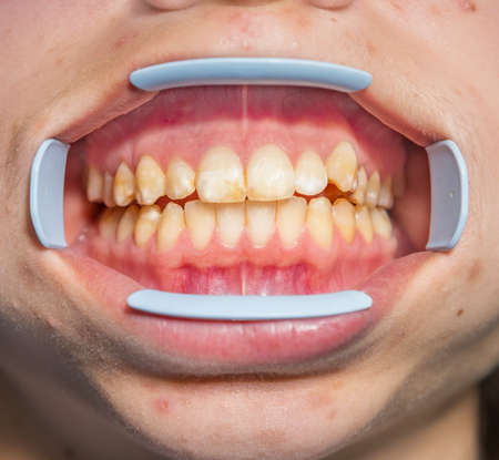 Photo pour Dental fluorosis (also termed mottled enamel) is hypomineralization of tooth enamel caused by ingestion of excessive fluoride during enamel formation.  Metabolism dysfunction, unhealthy skin, underdeveloped girl's lower jaw - image libre de droit