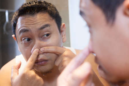 Photo for Portrait of attractive young Asian man squeezing acne on his nose, mirror reflection in bathroom - Royalty Free Image