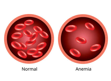 Illustration pour Infographic image, Blood of healthy human and blood vessel with anemia. - image libre de droit