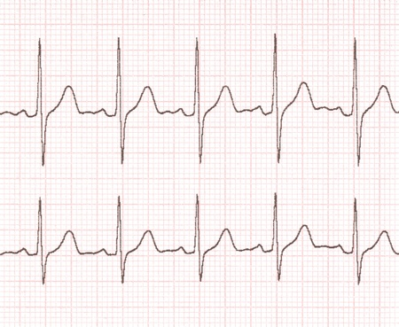 cardiogram on the background grid