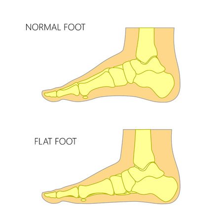 Illustration for Skeletal illustration of a normal foot and a flat foot. - Royalty Free Image