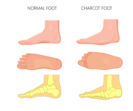 Illustration for Illustration of normal and rocker bottom Charcot foot (soles of the feet and medial view shows deformity of the foot). - Royalty Free Image