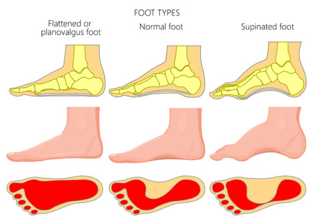Illustration for Vector illustration of the foot types. External and skeletal views of medial side of an ankle with footprint. - Royalty Free Image