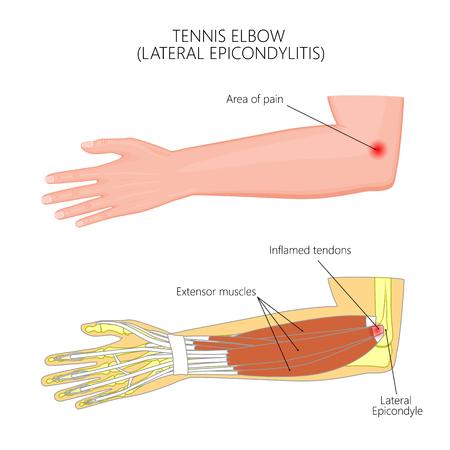 Illustration pour Illustration of Lateral Epicondylitis or tennis elbow.  Used: Gradient, transparency, blend mode. - image libre de droit