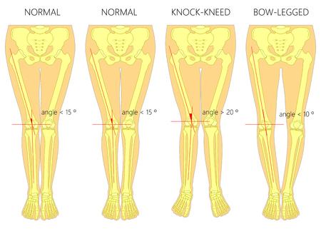 Vector diagram. Shapes of the legs. Normal and curved legs. Knock knees. Bowed legs. Genu valgum and genu varum.
