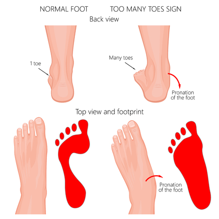 Ilustración de Vector illustration of the normal human foot and the foot with pronation or flatfoot, with hindfoot deformity. Too many toes sign. - Imagen libre de derechos