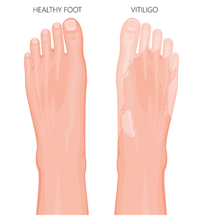 Vector illustration of a healthy foot and a foot with vitiligo, loss of skin color. Dorsal view.  For advertising, medical publications. EPS 8.