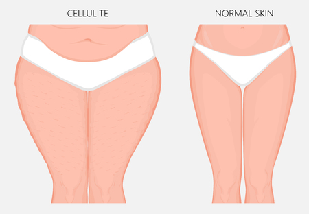 Vector illustration of woman body problem. Cellulitis on European, Asian female thighs, weight loss and normal skin.