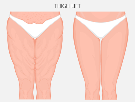 Vector illustration of a human body problem - fatty thighs and sagging skin correction before and after plastic thigh lift surgery. Front view. For advertising and medical publications. EPS 10.