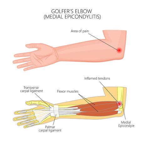 Illustration pour Illustration of Medial Epicondylitis or golfer's elbow.  Used: Gradient, transparency, blend mode. For medical publications. EPS 10 - image libre de droit