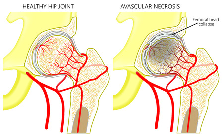 Illustration pour Vector illustration anatomy of a healthy human hip joint and a hip with avascular necrosis of the femoral head. Front view. For advertising and medical publications. EPS 10. - image libre de droit