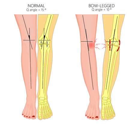 Vector illustration diagram. Shapes of human legs. Normal and curved legs. Knock knees. Bowed legs. Genu valgum and genu varum. For advertising, medical publications.