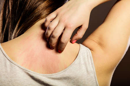 Photo pour Health problem. Closeup young woman scratching her itchy back with allergy rash - image libre de droit