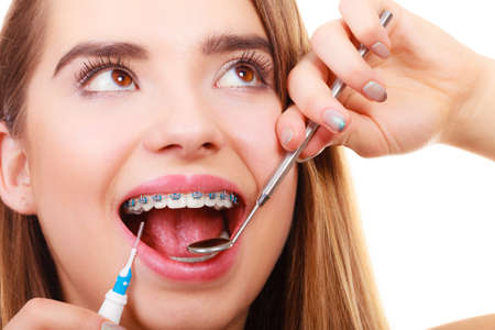 Photo pour Dentist and orthodontist concept. Young woman smiling cleaning and brushing teeth with blue braces using toothbrush and mirror - image libre de droit