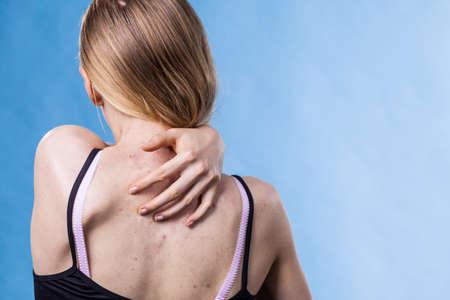 Photo pour Teen girl scratching her shoulder with pimples. - image libre de droit