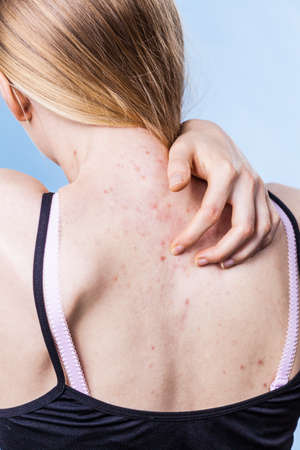 Photo pour Health problem, skin diseases. Young woman showing her back with acne, red spots. Teen girl scratching her shoulder with pimples. - image libre de droit