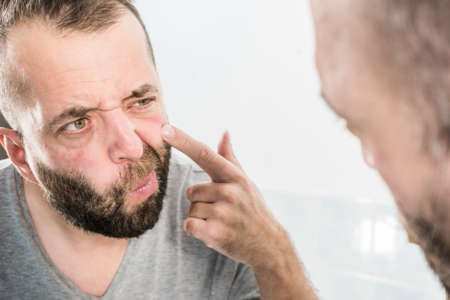 Photo pour Adult man investigating his wrinkles on face. Guy after waking up looking at himself in mirror. Aging process concept. - image libre de droit