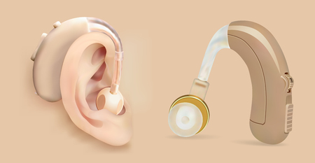 Illustration pour Vector hearing aid behind the ear. Sound amplifier for patients with hearing loss. Treatment and prosthetics in otolaryngology. Medicine and health. Realistic object. - image libre de droit