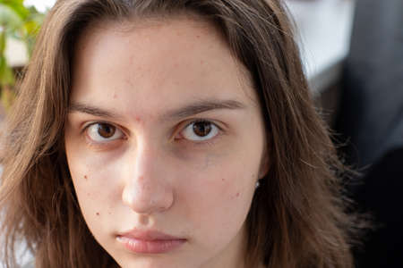 Photo pour Close-up face of a caucasian girl with acne. Clogged pores Chemicals and dust cause acne. Skin problem. - image libre de droit