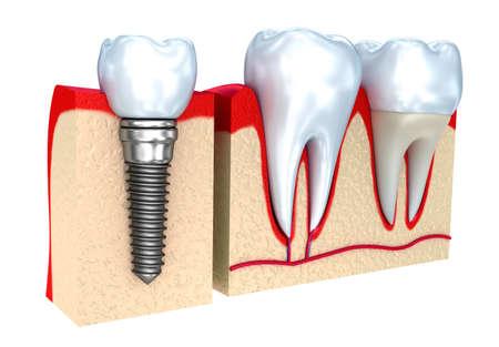 Dental crown, implant and teeth, 3d image.