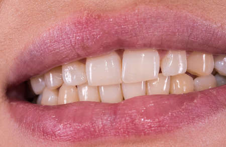 Woman smile with great natural teeth