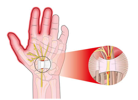 transverse carpal ligament compressed median nerve