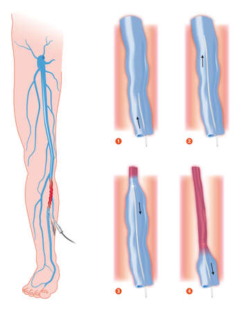 endovenous laser treatment varicose vein ablation