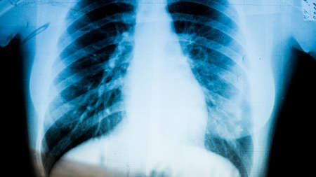 Photo pour X-ray of pneumonia disease patient close up on reflective x-ray board in hospital. - image libre de droit