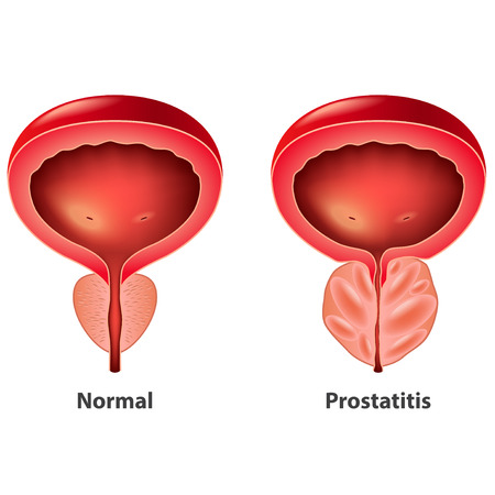 Illustration pour Prostatitis normal and inflamed prostate isolated vector photo-realistic illustration - image libre de droit