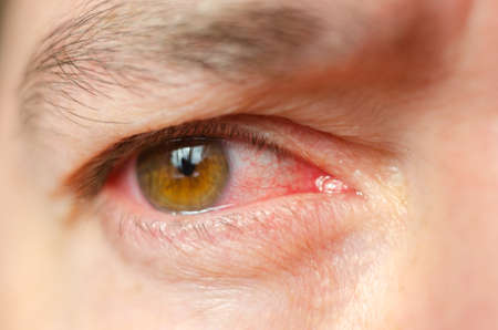 Photo for Closeup irritated infected red bloodshot eyes, conjunctivitis. - Royalty Free Image