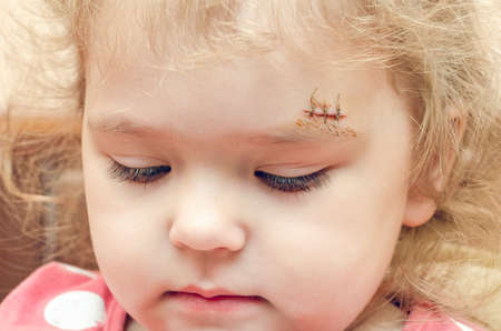 Photo for A little girl with a scar above her eyebrow, a deep wound sewn up. - Royalty Free Image