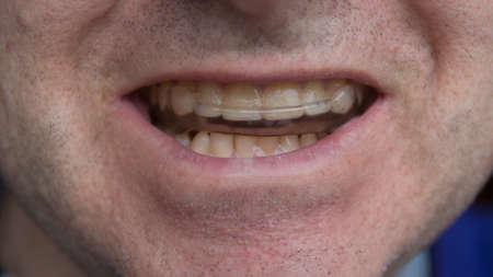 Photo pour man wearing tooth protecting mouthguard closeup - image libre de droit