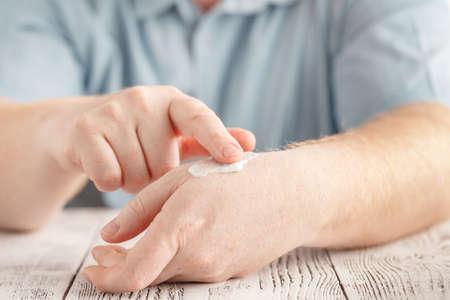 Photo pour Man applying moisturizer cream on hands, dry skin. Dermatology, cold weather skin care concept - image libre de droit
