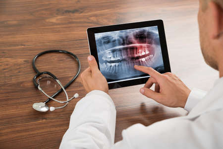 Photo pour Close-up Of Doctor Looking At Human Teeth X-ray On The Digital Tablet - image libre de droit