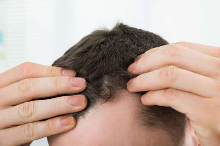 Photo pour Closeup of mid adult man checking hairline at home - image libre de droit