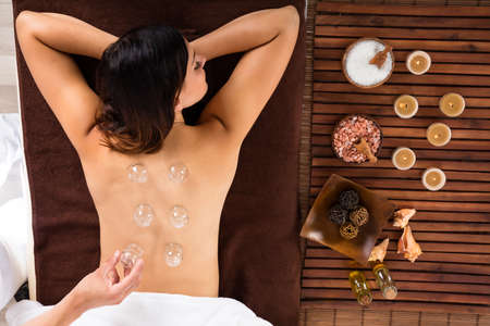 Photo for High Angle View Of A Relaxed Young Woman Receiving Cupping Treatment On Back - Royalty Free Image