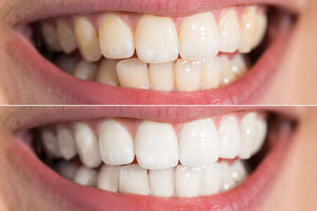 Photo pour Close-up Detail Of Person Teeth Showing Before And After Whitening - image libre de droit